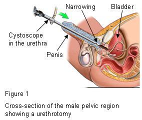 Urethrotomy